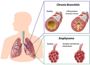 CPB - Chronic Pulminary Bronchitis