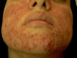 Skin rash from BVO