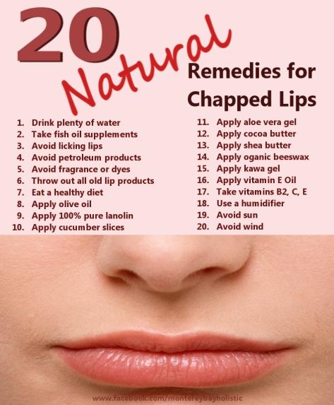 20 Remedies Chapped Lips