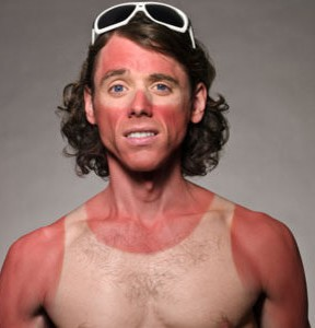sunburn man