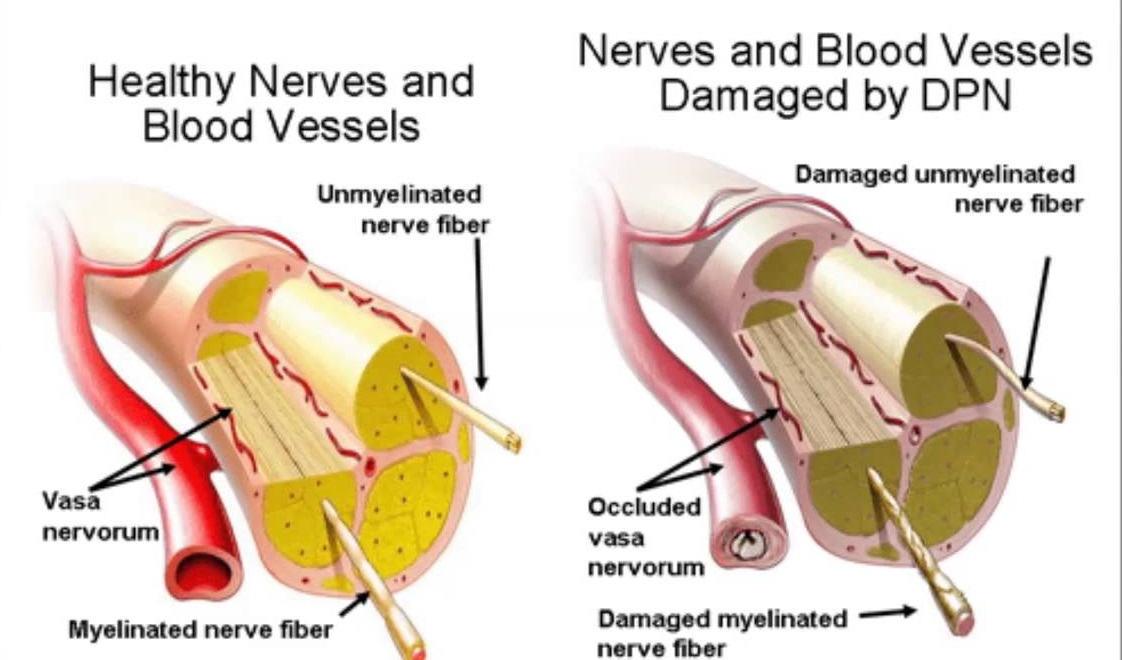 how does neurontin work for peripheral neuropathy
