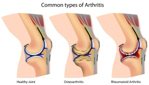 Arthritis Knee Diagram