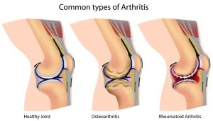 Arthritis Knee Diagram