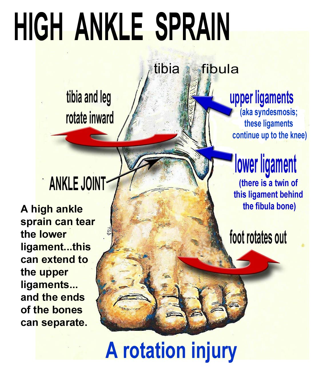 treatment of ankle syndesmosis injuries If they suspect a high ankle sprain or syndesmosis injury they may recommend a weight-bearing x-ray high ankle sprain treatment progressions.