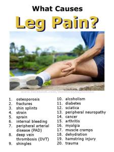 20 Top Causes of Leg Pain