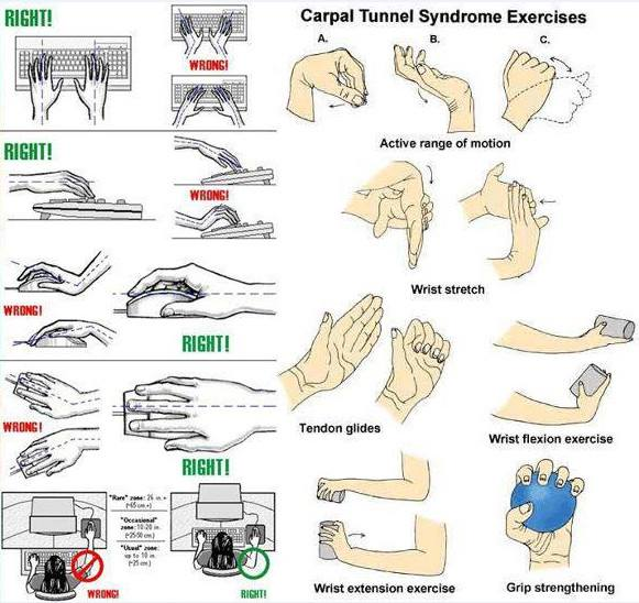 Carpal Tunnel Exercises Monterey Bay Holistic Alliance