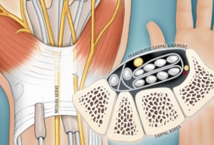 Carpal Tunnel Nerve Damage