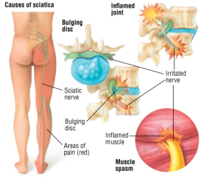 Sciatica Pain Causes