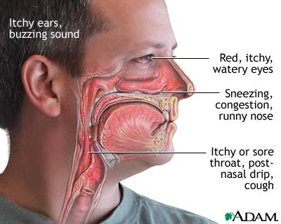 How To Treat Nasal Congestion With Natural Remedies