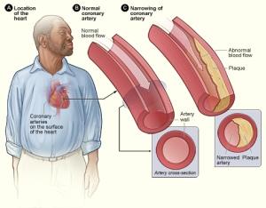 Heart Disease Man
