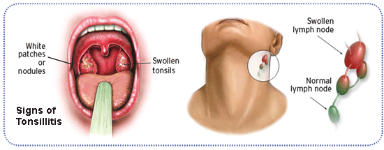 enlarged-tonsils-sore-throat-sex-free-purn-com