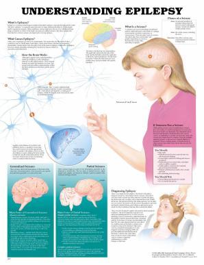 Understanding Epileps