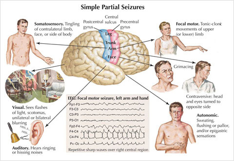 understanding epilepsy – are natural treatments effective, Skeleton