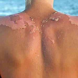 Sunburn Peel
