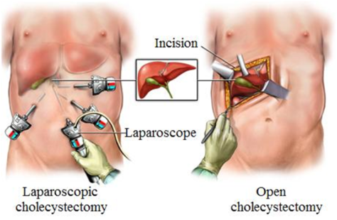 Laparoscopic Gallbladder