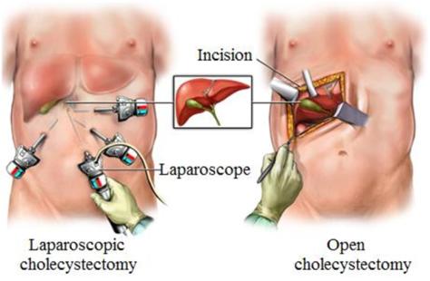 Laparoscopic Gallbladder